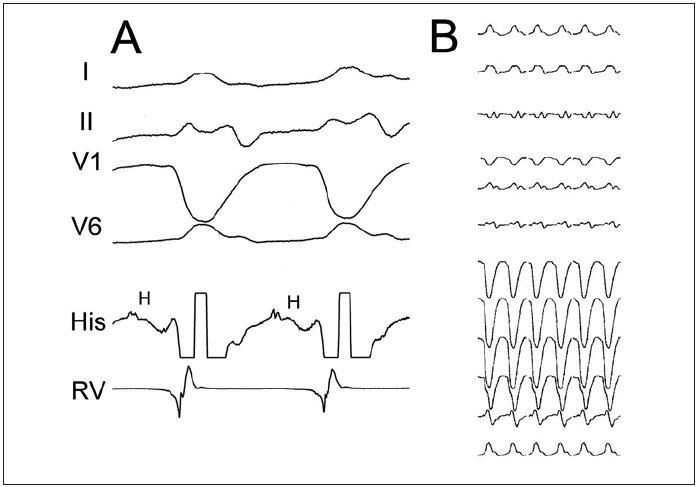 Komorová tachykardie typu raménkové reentry. Panel A ukazuje vybrané EKG-svody a intrakardiální elektrogramy z oblasti Hisova svazku (His) a pravé komory (RV). Panel B přibližuje typickou morfologii na 12svodovém EKG (morfologie blokády levého raménka Tawarova se širokými komplexy QRS, často s malým kmitem r v iniciální části a v tom případě s úzkým kmitem rS, který kontrastuje s jinak velmi širokým komplexem QRS). Jednou z diagnostických známek je přítomnost potenciálu Hisova svazku (H) před každým komorovým potenciálem při KT a trvání HV-intervalu při KT delší než při sinusovém rytmu.