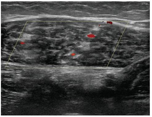 Flebotrombóza dvojice svalových žil m. gastrocnemius medialis