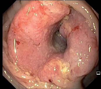 Cirkulární stenozující karcinom ascendens.