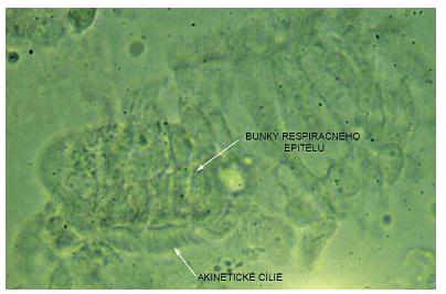 Akinetické cílie zachytené vysokorýchlostnou videomikroskopiou. Fig. 3. High speed video microscopy image – akinetic cilia.