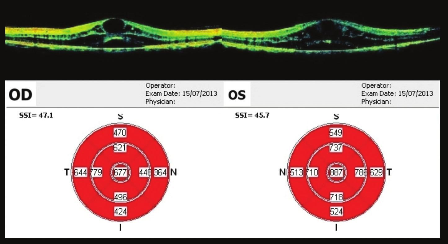 OCT makul 34 týdnů od prvního vyšetření Progrese nálezu – výrazná cystoidní přestavba, ve fovee 677 μm na OP, na OL 887 μm. Opět indikován k aplikaci bevacizumabu na OP