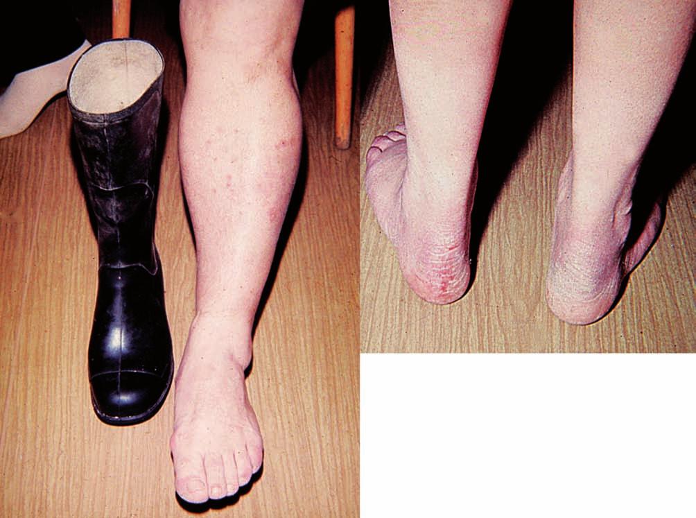 Eczema contactum – antioxidant IPPD (gumové holínky)
