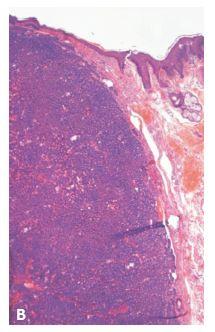 Obr. 4a,b Nodulárny bazalióm mihalnice G 1, dobre ohraničený. Hematoxylin a eozin (HE), A: histotopogram tkanivového rezu, B: 200x