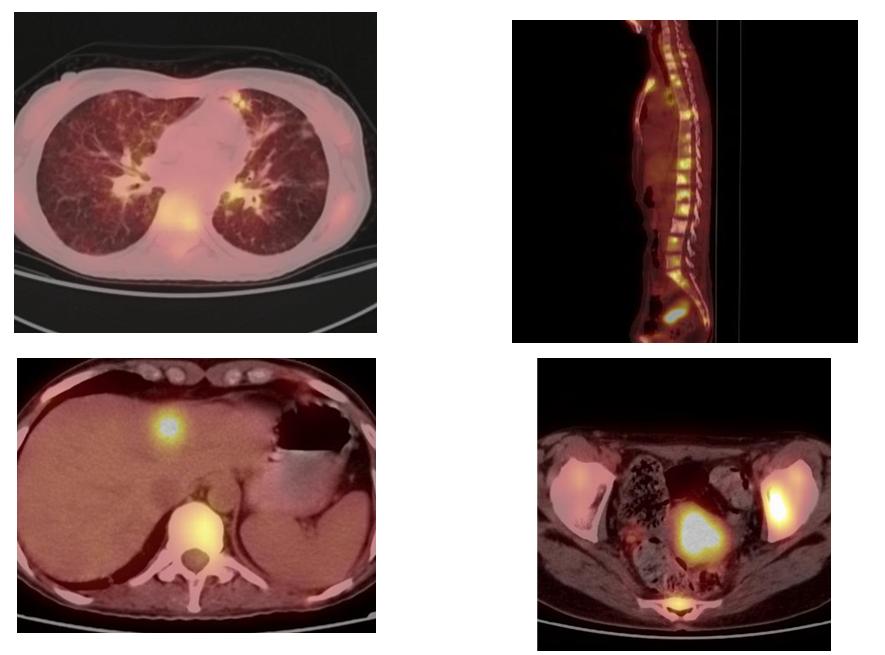 PET/CT 10. března 2020 při léčbě lorlatinibem
