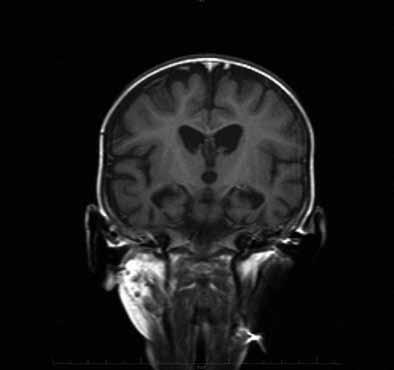 MR mozku dítěte s mitochondriální encefalopatií a neurogenní svalovou atrofií ve věku 13 měsíců (pacient 1).