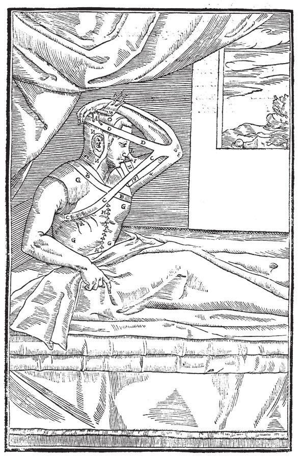 Originální ilustrace pacienta s plastikou nosu, dnes zvanou italská metoda