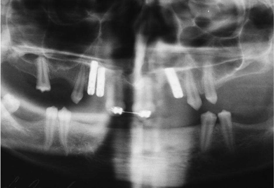 Stav po ortodontické korekci a implantaci v horní čelisti.