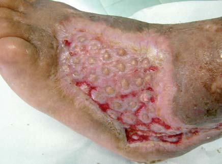 Defekt po 1. mesiaci po aplikácii dermoepidermálnych štepov