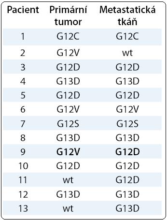 Srovnání typu mutací v kodonu 12 a 13 genu KRAS v primárním tumoru a metastatické tkáni u pacientů s kolorektálním karcinomem. Přehled detekovaných mutací KRAS u 13 pacientů s vyšetřeným primárním tumorem a metastázou. Zvýrazněn je případ výskytu odlišného typu mutace v analyzovaných materiálech identického pacienta (pacient č. 9). Nemutovaný gen KRAS (wt – wild type).