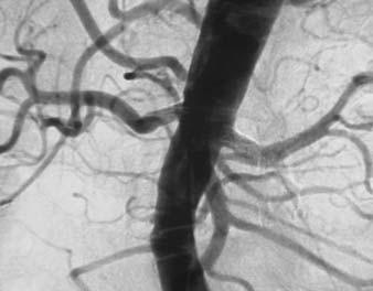 Kontrolní angiografie AA po oboustranné PTRA s implantací stentů a s normalizací šíře lumen renálních tepen.