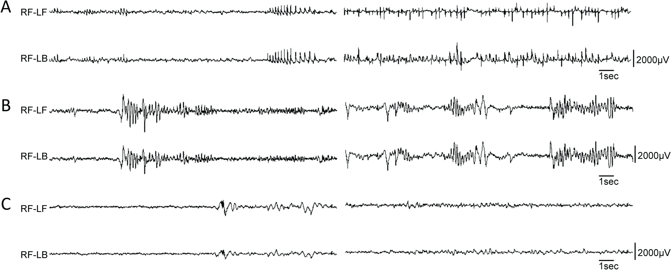 Variety of EEG seizures in different <i>Dnm1</i><sup><i>Ftfl</i></sup> conditional mutants.
