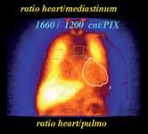 Zobrazení adrenergní inervace a počítání poměrů srdce versus mediastinum či plíce u SPECT scintigrafie. 123I – metaiodobenzylguanidinu (MIBG) u pacienta se známkami srdečního selhání.