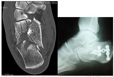 Obr. 1, 2: Zlomenina Sanders II s prevládajúcou dislokáciou mediálnej steny, ošetrená z Mc Raynodsovho prístupu – 34ročný pacient