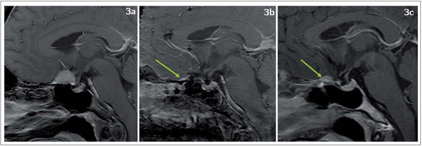 """Meningiom planum sphenoidale, T1 vážené obrazy s kontrastní látkou, sagitální řezy. Obr. 3a) Předoperační MR, obr. 3b) MR den po operaci, obr. 3d) MR dva roky po operaci.  Šipka na obr. 3b míří na nedostatečně odstraněný okraj meningeomu (dural tail), na obr. 3c na drobnou recidivu meningeomu v místě původně nedostatečně odstraněného """"dural tail"""". Nález byl indikován k ozáření na Leksellově gama noži."""