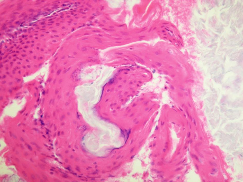 Výsledok histopatolologického vyšetrenia - kostená epidermálna cysta.