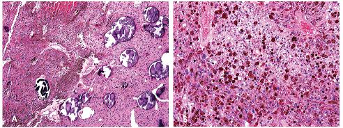 Psamomatózní melanotický schwannom složený z epiteloidních buněk s melaninovými granuly v cytoplazmu a ložisek kalcifikovaných psamomatozních tělisek. Barveno hematoxylinem eozinem (A, zvětšení 100x; B, zvětšení 200x).