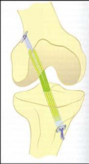 Endobutton position