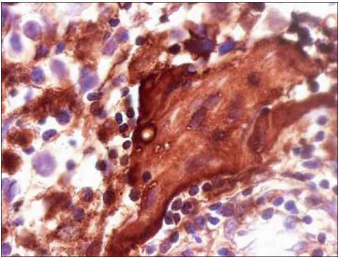 Imunohistochemické vyšetření nádoru: pozitivní průkaz syncytiotrofoblastu produkujícího hCG (zvětšení 400×).