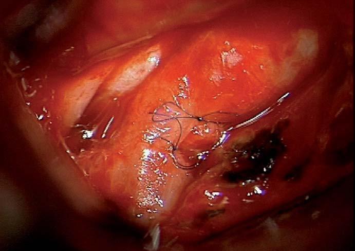 Sutura defektu krkavice po reruptuře aneuryzmatu.