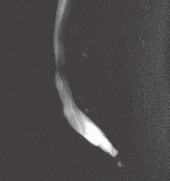 MR nález počínající kompresivní fraktury těla L3 (T2WI_TSE) a znázornění komprese durálního vaku v místě patologické léze (MYELO_2D).