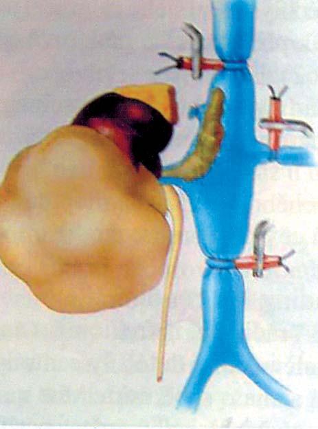 Tumor pravé ledviny s trombem hladiny II (naložení turniketů) [24].