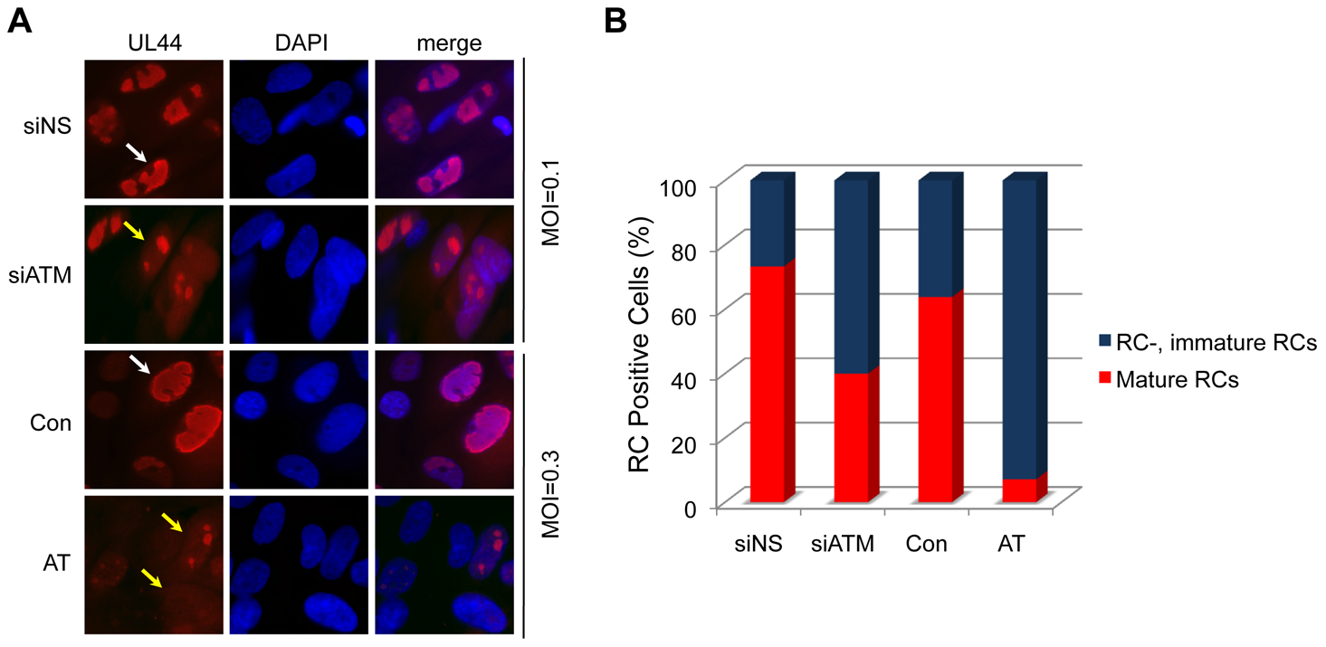 "Reduced formation of ""mature"" viral replication compartments (RCs) in AT fibroblasts and siATM-transfected HEL fibroblasts."