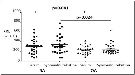 Rozdíl ve hladině synoviálního a sérového prolaktinu (PRL) u nemocných s revmatoidní artritidou (RA) a kontrolní skupinou, nemocných s nezánětlivým kloubním onemocněním, osteoartrózou (OA).