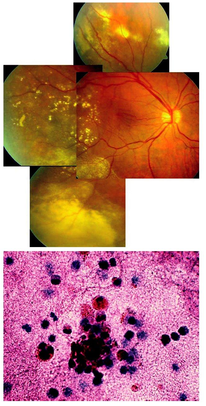 Coatsova nemoc manifestující se jako zadní uveitida nejasné etiologie u 55leté ženy. A) Patrné žluté transudáty, nařasení sítnice v makule a cévy nepravidelného kalibru v periferii očního pozadí pravého oka. B) Cytologické vyšetření sklivce prokázalo směs erytrocytů s drobnými kulatojadernými buňkami původu gliového, eventuálně lymfocytárního. Nález odpovídá nezánětlivému očnímu onemocnění