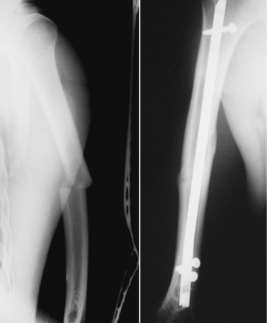 a. RTG obraz zlomeniny diafýzy pažní kosti Pic. 2a. X-ray picture of the humeral shaft fracture b. RTG obraz zhojené zlomeniny pažní kosti po nitrodřeňové osteosyntéze retrográdně zavedeným zajištěným hřebem UHN Pic. 2b. X-ray picture of the healed humeral shaft fracture after intramedullar osteosynthesis by retrograde unreamed humeral nail