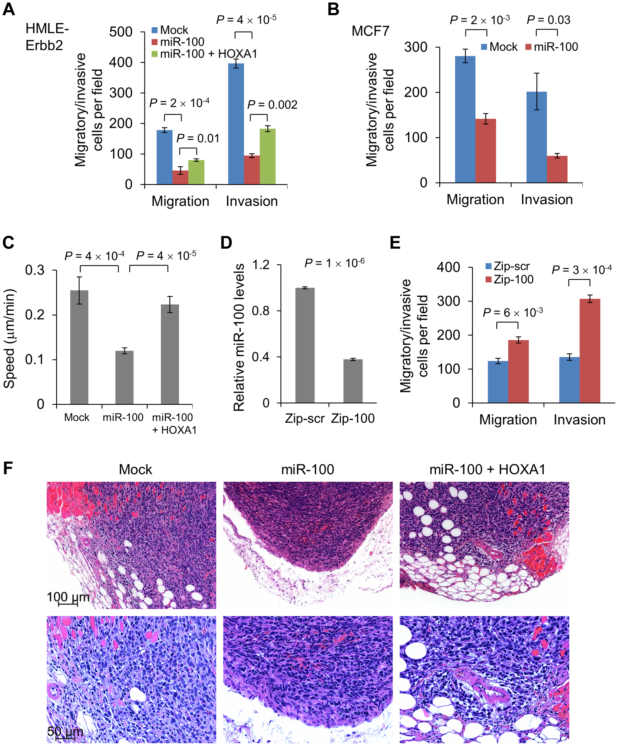 miR-100 inhibits migration and invasion by targeting <i>HOXA1</i>.