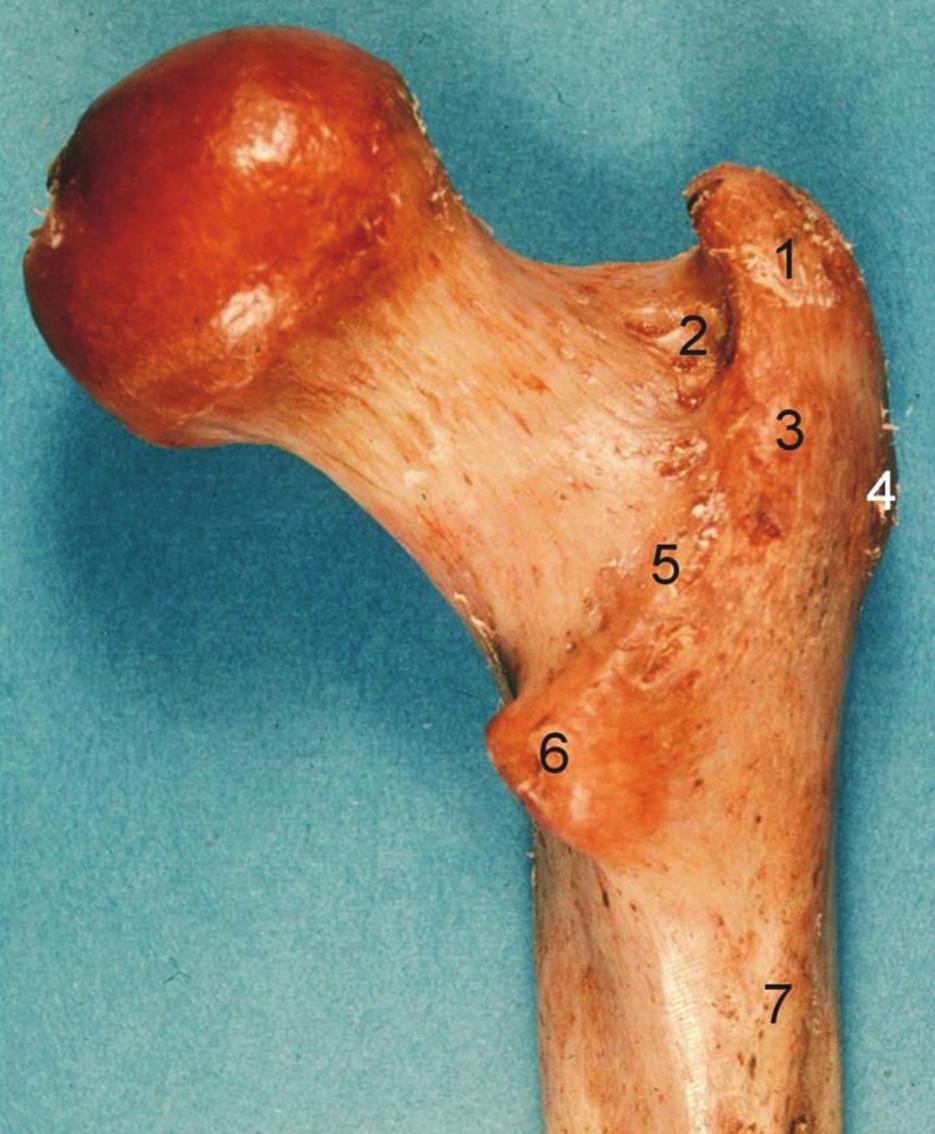 Proximální femur, pravá strana, pohled zezadu: 1 – fossa piriformis, 2 – fossa trochanterica, 3 – trochanter major, 4 – tuberculum vastoabductorium, 5 – crista intertrochanterica, 6 – trochanter minor, 7 – tuberositas glutea. Fig. 2: Proximal femur, right side, posterior aspect: 1 – fossa piriformis, 2 – fossa trochanterica, 3 – trochanter major, 4 – tuberculum vastoabductorium, 5 – crista intertrochanterica, 6 – trochanter minor, 7 – tuberositas glutea.