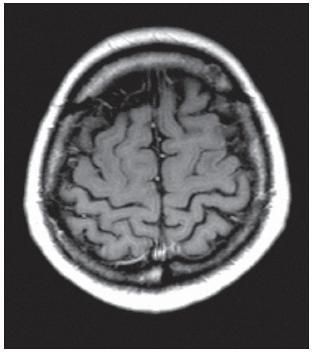 Po podání paramagnetické kontrastní látky bez známek patologického zvýšení signálu, které by odpovídalo porušené hematoencefalické bariéře.
