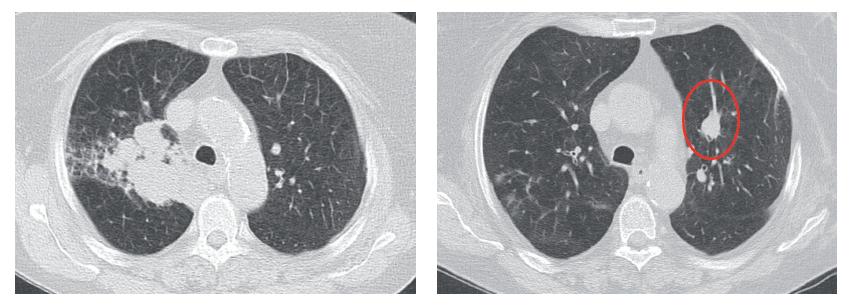 CT skeny s progredující tumorozní infiltrací vpravo a metastázou v levé plíci po chemoterapii před zahájením nivolumabu