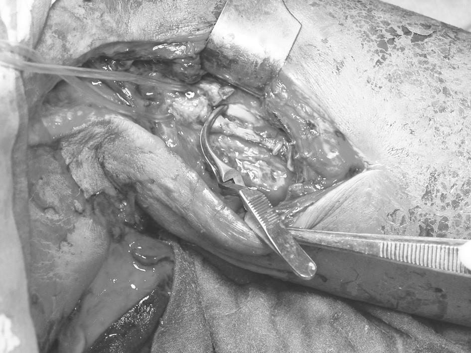 Pseudoaneuryzma proximální části arteria brachialis. Defekt ventrální stěny arterie v popisované délce 3 cm Fig. 1. Brachial artery pseudoaneurysm. Defect of a ventral aspect of the arterial wall is 3 cm long