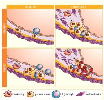 Srovnání časných a pozdních aterosklerotických lézí u nediabetiků a diabetiků. Modifikováno podle zdroje: Kanter J. E., et al. Circ Res 2007 (10)