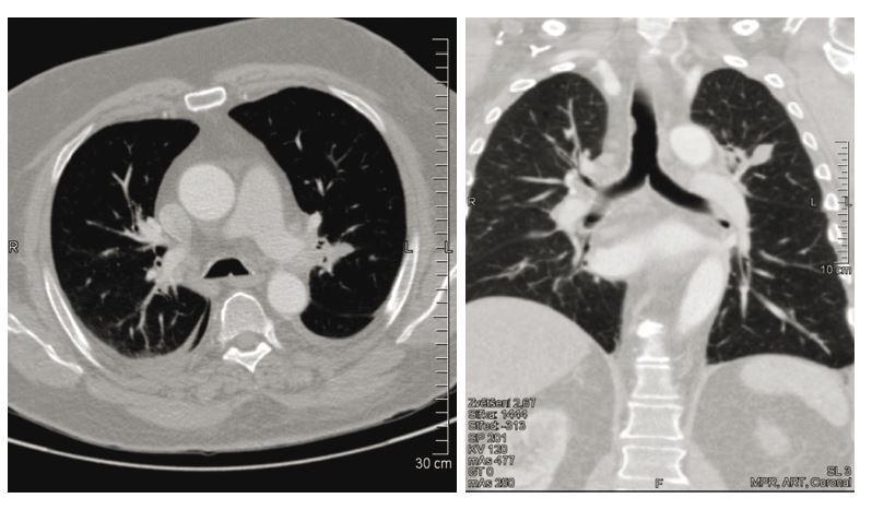 Kontrolní CT nález s morfologickou regresí infiltrace plicního parenchymu