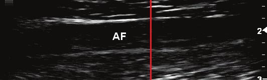 Upravený vstupní snímek stehenní tepny (AF) svyznačeným směrem pro zisk jasového profilu vedeným kolmo na cévní stěnu (sloupec W = 300 px obrazu).
