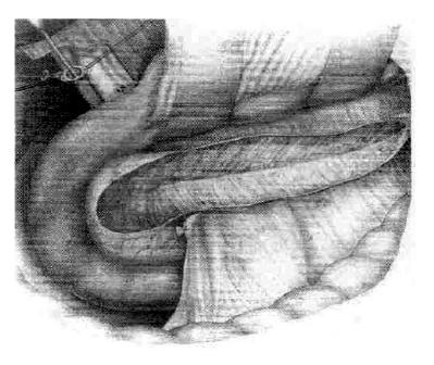 Predná resekcia hlavy pankreasu a pozdĺžna resekcia v oblasti duktus pankreatikus v prípadoch úzkeho pankreatického vývodu podľa Izbickiho (31)