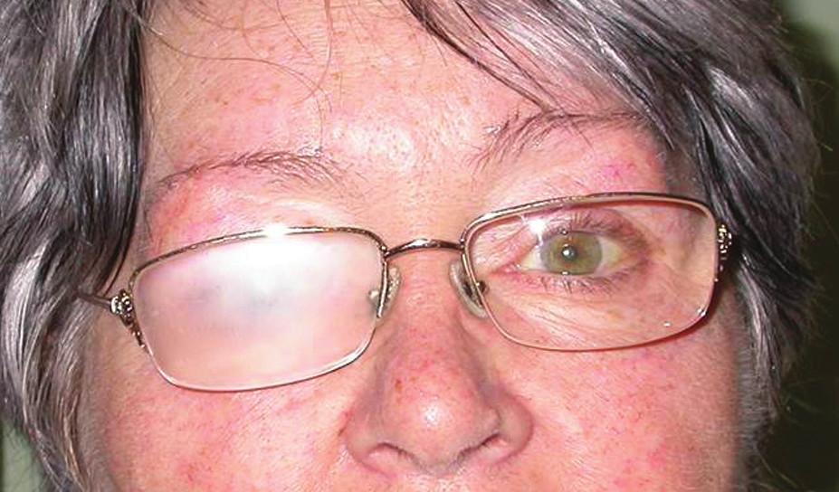 Matová brýlová čočka