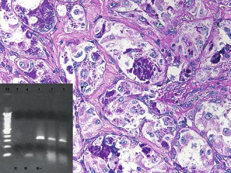 Kazuistika 10. Alveolární sarkom měkkých tkání, nádor s typickým uspořádáním, velkými polygonálními nádorovými buňkami a s charakteristickými intracytoplazmatickými krystalickými strukturami. Barveno metodou PAS (původní zvětšení 400x). Vložený obrázek: Agarózový gel s detekcí fúzního genu ASPL/TFE3, který je produktem translokace t(X;17). Zprava: 1. metastáza z roku 2013, 2. primární nádor, 3. pozitivní kontrola RT-PCR, 4. negativní kontrola RT, 5. negativní kontrola PCR, M - 100 bp velikostní marker.