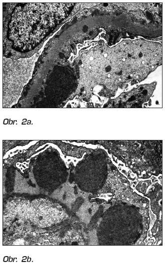 Obr. 2a, b. Biopsia obličky, elektrónogramy. Zhrubnutá glomerulárna bazálna membrána so subepitelovými, intramembranóznymi a subendotelovými depozitmi.  (Publikované so súhlasom RNDr. Nyitrayovej, Cytopathos, Bratislava).