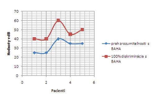 Výsledky slovnej audiometrie s BAHA testerom v skupine jednostrannej hluchuty – prah zrozumiteľnosti a 100% diskriminácia.
