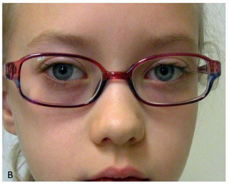 Osmiletá pacientka s inciální formou strabismus sursoabduktorus – A: postavení bulbů před operací a B: postavení bulbů po operaci