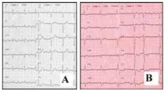 Povrchové EKG u typického flutteru síní. A – counterclockwise, B – clockwise.
