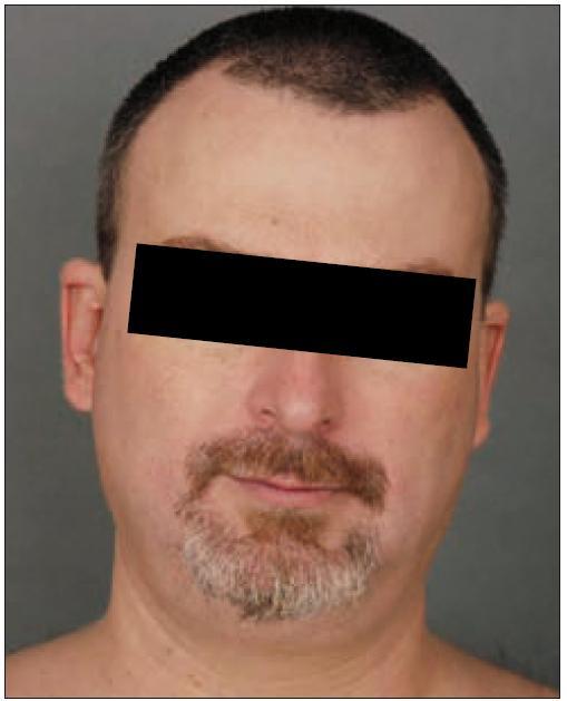 Týž pacient – úplné zhojení projevů v obličeji v rámci léčby PUVA.