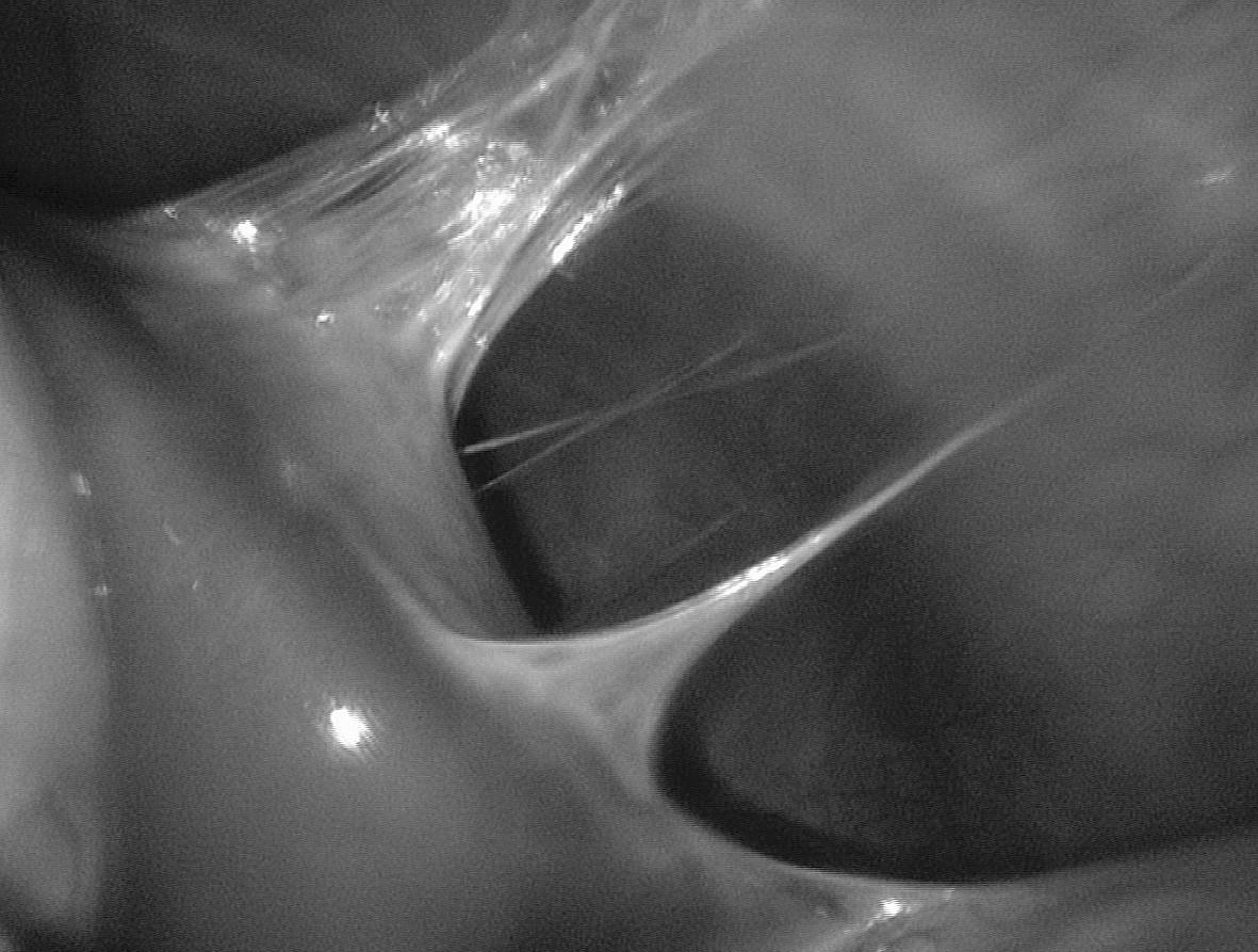 """""""Violin string"""" adhézie pri perihepatitíde"""