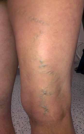 Varixy zadní strany stehna v oblasti insuficientní v. Giacomini.
