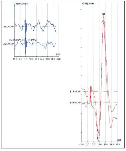 VEMP pri prevodovej poruche sluchu vľavo.
