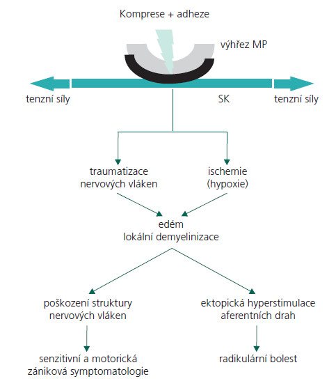 Schéma 2. Schéma patofyziologie kompresivní radikulopatie. MP – mezi obratlová ploténka, SK – spinální kořen.