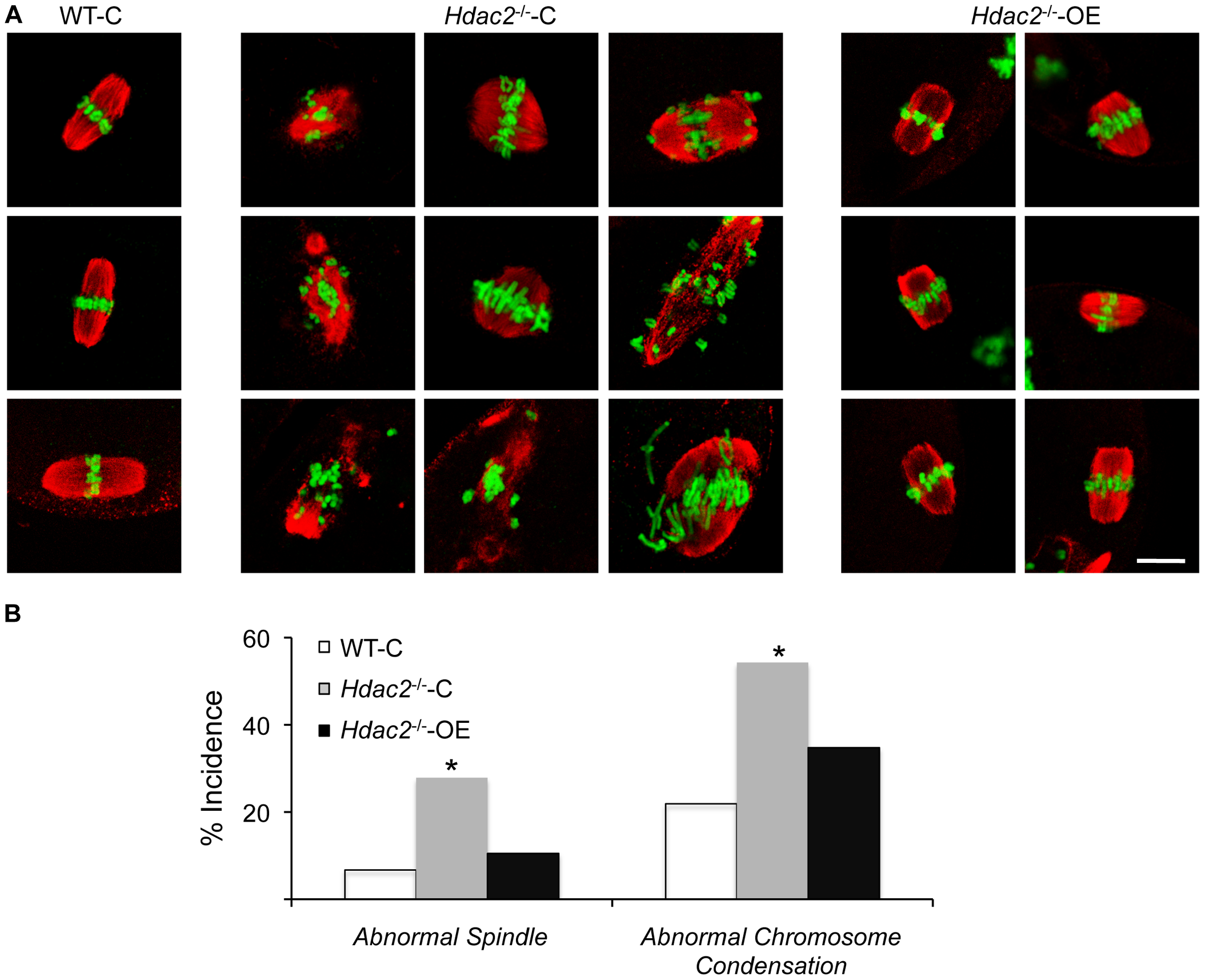 Expression of HDAC2 in <i>Hdac2<sup>−/−</sup></i> oocytes restores normal chromosome condensation and spindle formation in MII eggs.